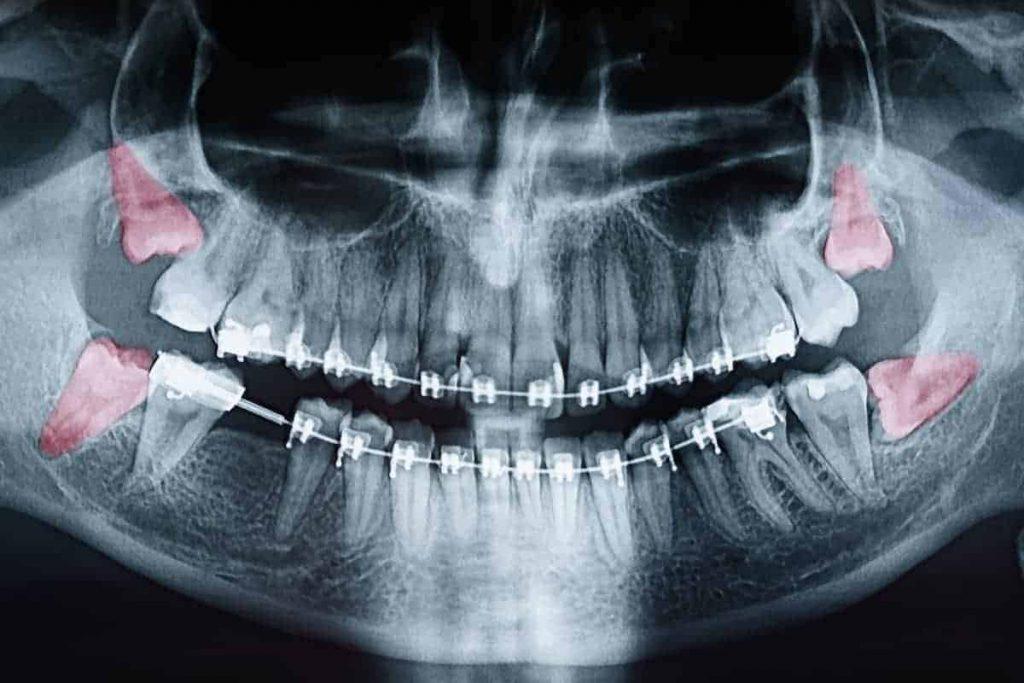 Why Monitor Wisdom Teeth